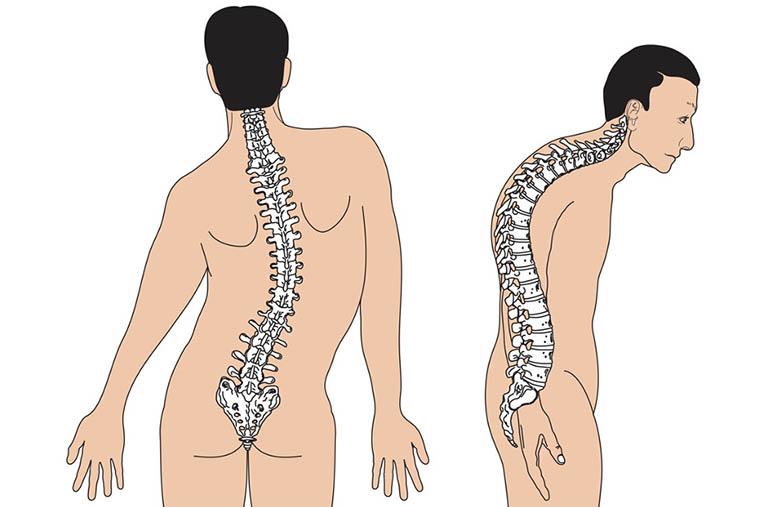 Nguyên nhân cơ học khiến người bệnh bị đau cột sống lưng dưới