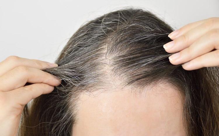 Bị tóc bạc sớm có chữa được không?