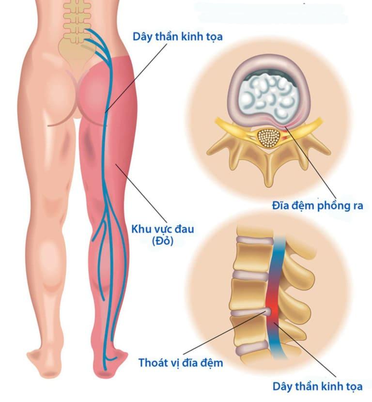 Biến chứng thường gặp ở dạng nhẹ của thoái hóa cột sống thắt lưng là đau thần kinh tọa.
