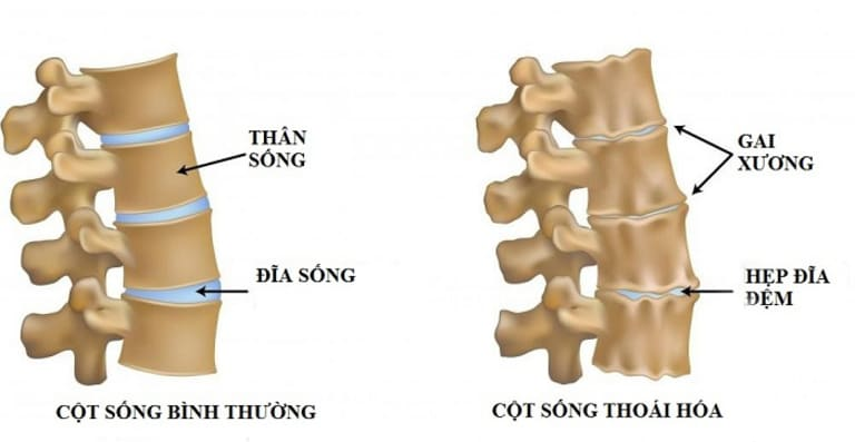 Biến chứng thoái hóa cột sống nặng hay nhẹ phụ thuộc vào mức độ hình thành gai xương và tình trạng đĩa đệm bị lệch.