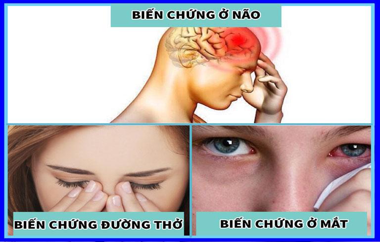 Viêm đa xoang nhức đầu nếu không được điều trị tốt sẽ gây nhiều biến chứng nguy hiểm