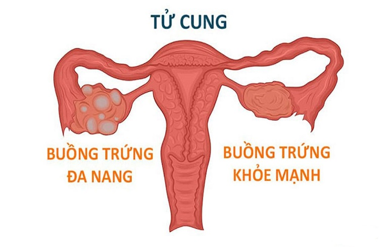 Buồng trứng có hai bên và không phải bên nào cũng gặp tình trạng đa nang