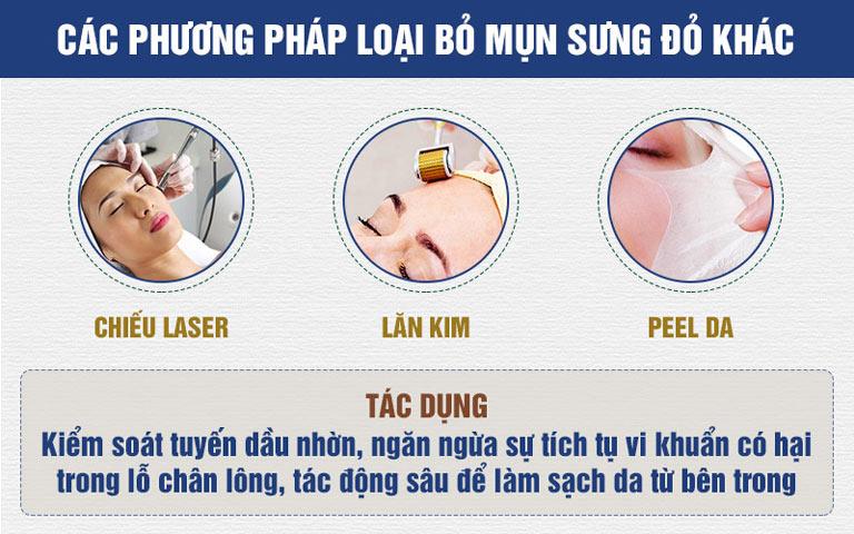 Các phương pháp loại bỏ mụn sưng đỏ khác phổ biến hiện nay