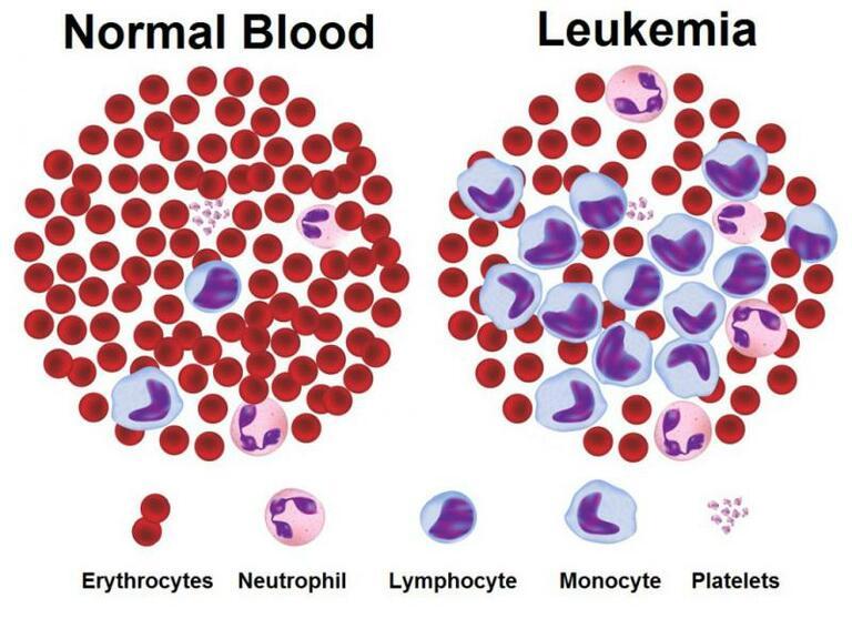Xét nghiệm tế bào ngoại vi trong máu sẽ phân biệt được bệnh viêm khớp dạng thấp với bệnh bạch cầu.