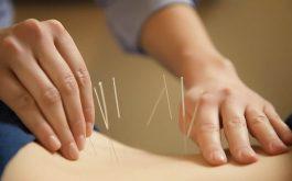 Cách châm cứu chữa đau thần kinh tọa đúng cách hiệu quả