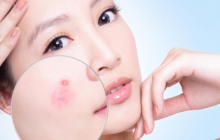 Mụn viêm đỏ phá hủy cấu trúc da, để lại nhiều thâm sẹo gây mất thẩm mỹ