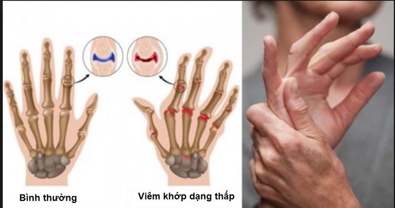 Biểu hiện lâm sàng của viêm khớp dạng thấp thường xuất hiện tại các khớp tay. Các biện pháp xét nghiệm dùng chẩn đoán viêm khớp dạng thấp không thể chính xác nếu không kết hợp cùng các dấu hiệu lâm sàng.