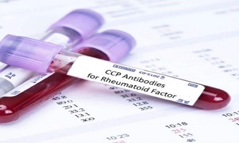 Xét nghiệm cùng lúc cả chỉ số RF và Anti CCP sẽ cho kết quả chẩn đoán bệnh viêm khớp dạng thấp chính xác hơn.