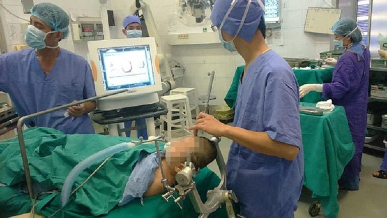 Phẫu thuật động kinh chỉ thực hiện đối với trường hợp kháng thuốc