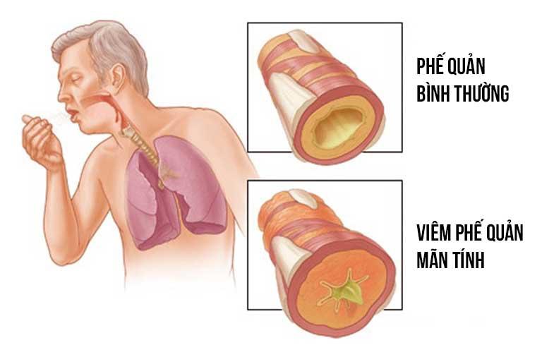 Sưng và tụ dịch nhầy làm hẹp đường khí ở bệnh viêm phế quản mãn tính