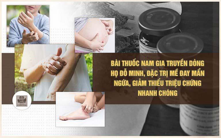 Bài thuốc nam gia truyền điều trị mề đay của Đỗ Minh Đường