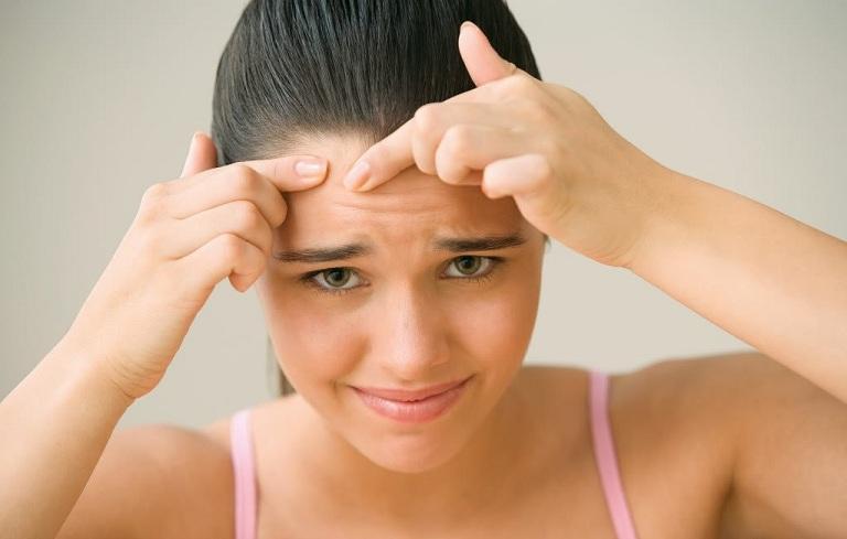 Thói quen nặn mụn có thể sẽ khiến tình trạng trở nên nghiêm trọng hơn