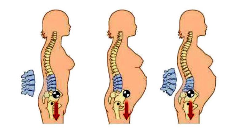 Sự thay đổi hình dạng cột sống khi mang thai là một trong những nguyên nhân sinh lý phổ biến gây đau.