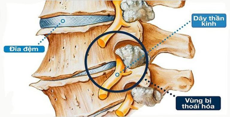 Vùng cột sống lưng bị thoái hóa gây đau nhức