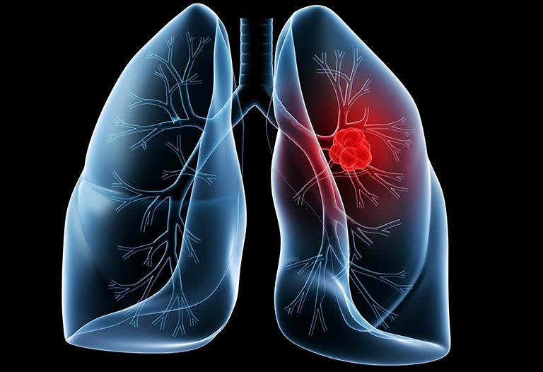 Ung thư phổi gây đau nhói sau lưng trên bên phải và bên trái