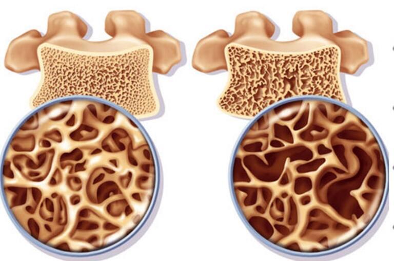 nguyên nhân đau nhức ở các khớp xương