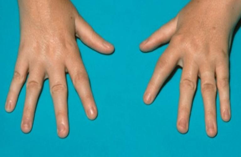 Một trong những biến chứng thường gặp của tình trạng đau nhức xương khớp ở trẻ em do bệnh lý là gây biến dạng khớp.
