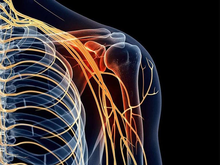 Đau nhức xương khớp tê bì chân tay là bệnh gì