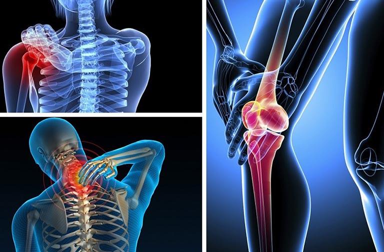 Những bệnh xương khớp khác