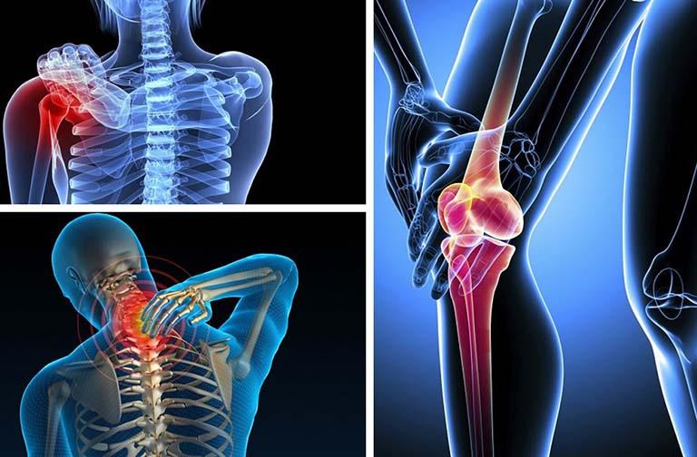 Hay bị đau nhức xương khớp vào ban đêm và cách điều trị
