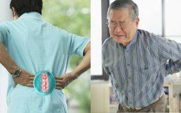 Đau rễ thần kinh cột sống là tình trạng thường gặp do nhiều nguyên nhân gây ra