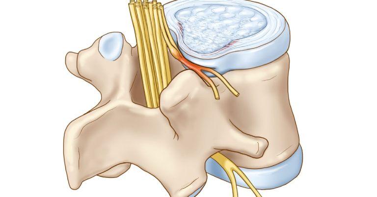Khi các dây thần kinh cột sống bị chèn ép lâu ngày sẽ ảnh hưởng nghiêm trọng đến sức khỏe người bệnh