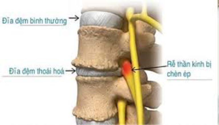 Thoái hóa đĩa đệm được xem là nguyên nhân hàng đầu gây đau ở rễ thần kinh cột sống