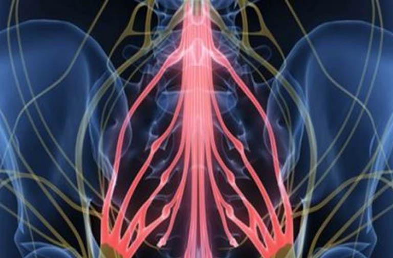 Hội chứng chùm đuôi ngựa