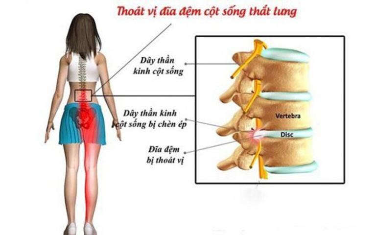 Đau thắt lưng ở phụ nữ là triệu chứng thường gặp của bệnh thoát vị đĩa đệm