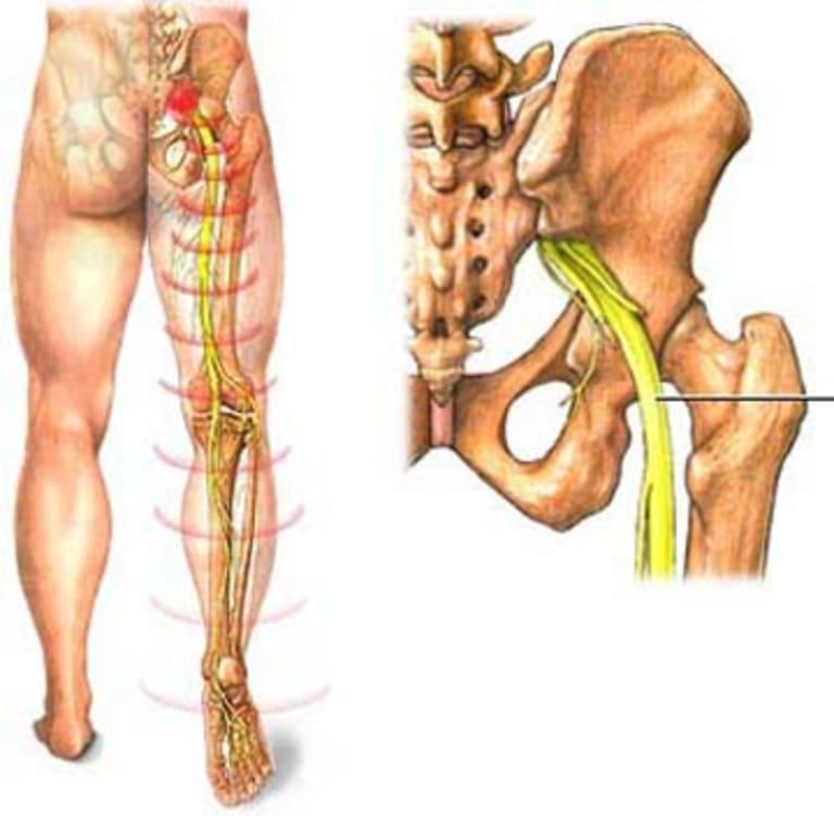 Đau do thần kinh tọa bị chèn ép thường chỉ xuất hiện ở phần mông và chân phải.