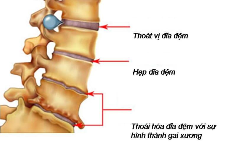 Thoát vị đĩa đệm cột sống cổ là nguyên nhân phổ biến gây ra các cơn đau từ vai gáy lan ra cánh tay.