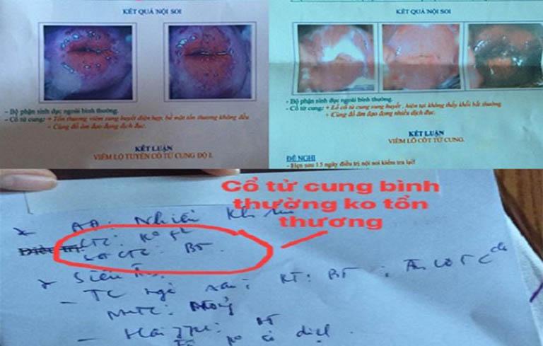 Kết quả sau khi sử dụng bài thuốc chữa viêm lộ tuyến cổ tử cung của bác sĩ Đỗ Thanh Hà
