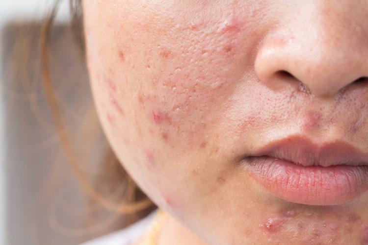 Mụn trứng cá đỏ trên mặt và cách điều trị hiệu quả triệt để cho nam nữ