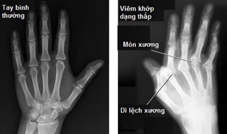 Thông thường, viêm khớp dạng thấp chỉ thể hiện rõ các thương tổn của các khớp trên hình ảnh X - quang khi bệnh đã nặng.