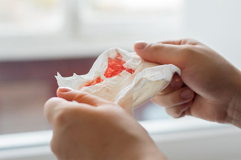 Ho khan ra máu thường biểu hiện khạc ra máu khi cơ thể cố gắng ho hoặc cơn ho kéo dài dai dẳng