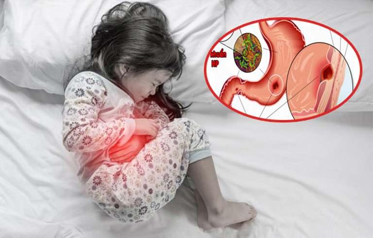 Số lượng trẻ em bị đau dạ dày đang ngày một tăng lên