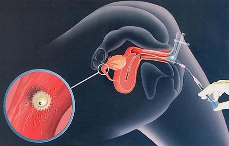 Mang thai nhờ phương pháp bơm tinh trùng vào buồng tử cung