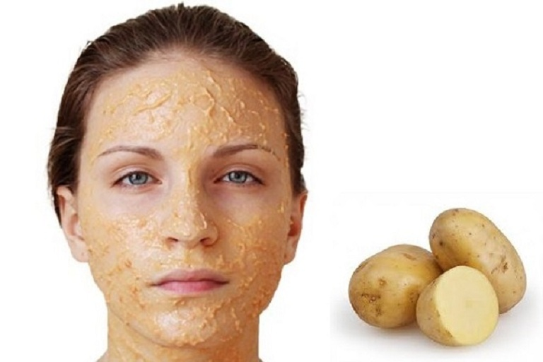 Đắp mặt nạ khoai tây nghệ vàng giúp hỗ trợ loại bỏ nám, tàn nhang