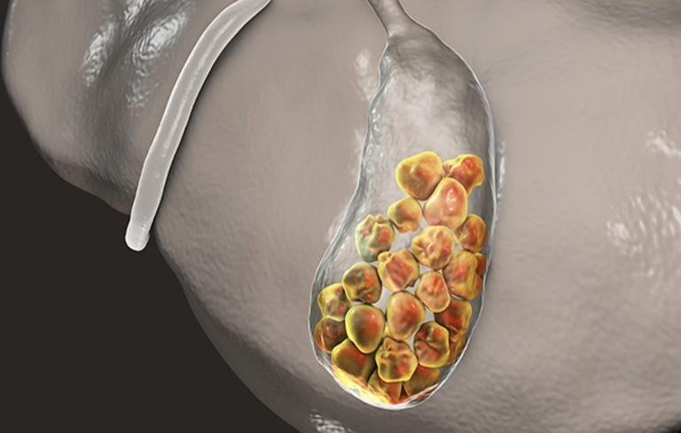 Mổ sỏi mật khi kích thước quá to, thường xuyên tái phát hay gây biến chứng