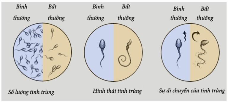 Độ di động của tinh trùng và một số đặc điểm khác chỉ có thể nhận biết thông qua tinh dịch đồ.