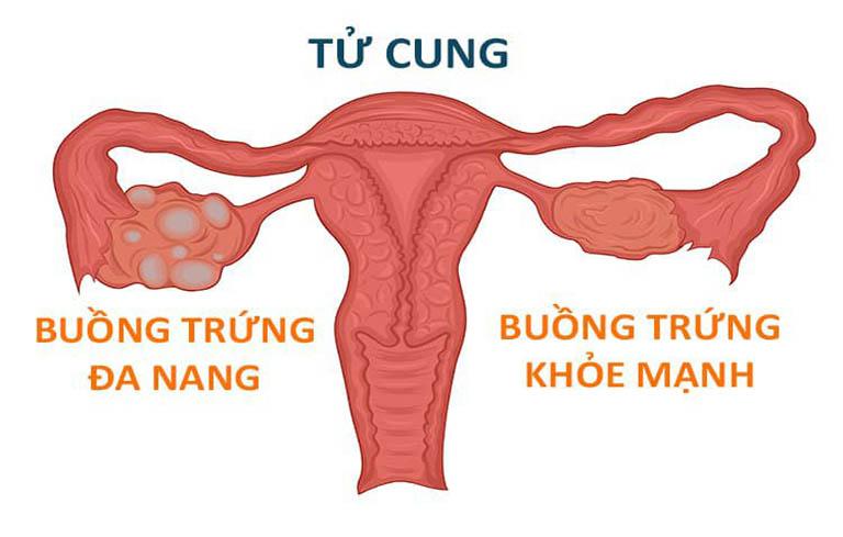 Một trong những nguyên nhân gây hiếm muộn chính là buồng trứng đa nang