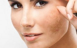 Cách trị nám da mặt