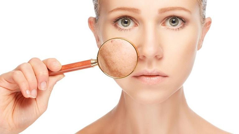 Nám hình thành do lượng Estrogen bị suy giảm đột ngột