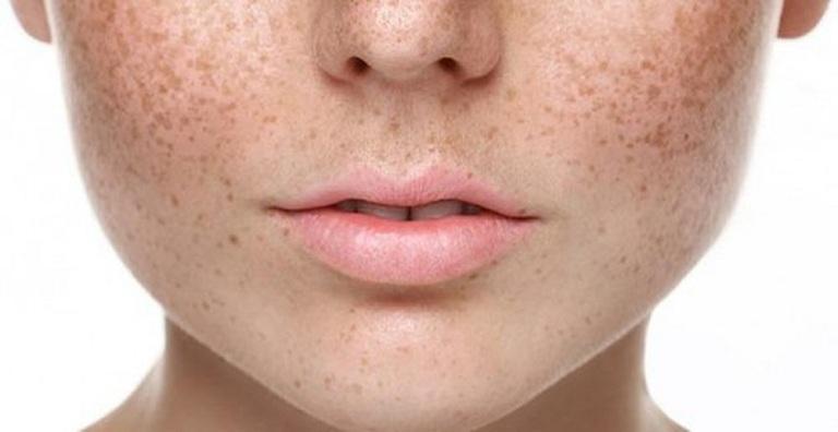 Nám da hình thanh do tế bào da tích tụ nhiều sắc tố melanin