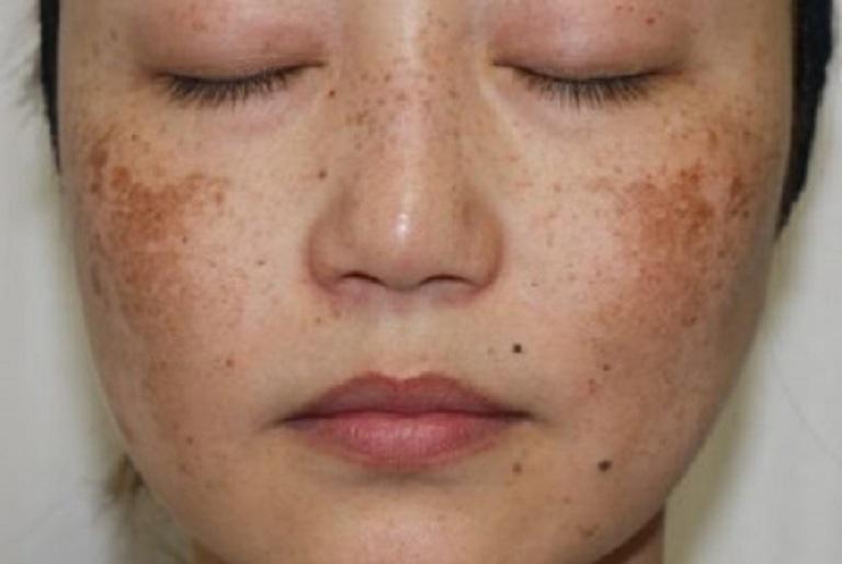 Nám hỗn hợp là tình trạng da mặt xuất hiện cả nám mảng và nám chân sâu