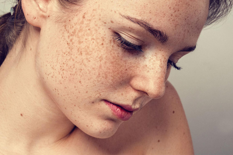 Nám là bệnh lý khiến da trở nên sạm màu, kém sắc