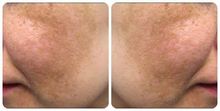 Nám mảng thường tập trung thành mảng lớn trên da mặt