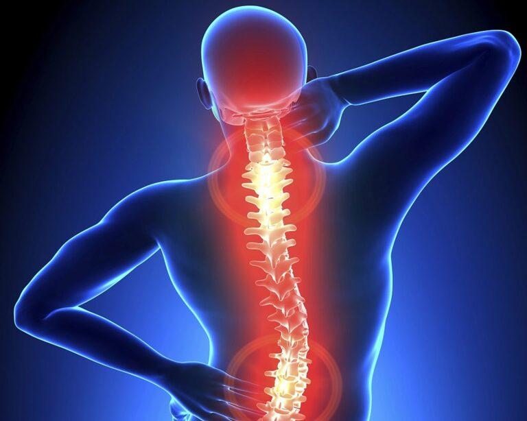 Ngủ dậy bị đau cổ không quay được là bệnh gì?