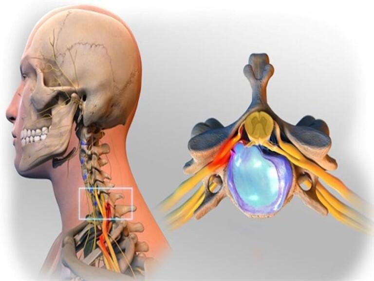 Biểu hiện đầu tiên của thoái hóa đốt sống cổ là thoát vị đĩa đệm. Nhân nhầy chèn ép rễ dây thần kinh sẽ gây ra những cơn đau vai gáy.
