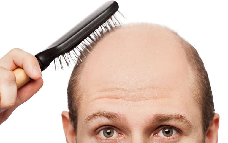Hói đầu là một dạng rối loạn gây rụng tóc thường gặp ở cả nam và nữ